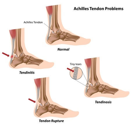 Achilles Tendon Injury diagram